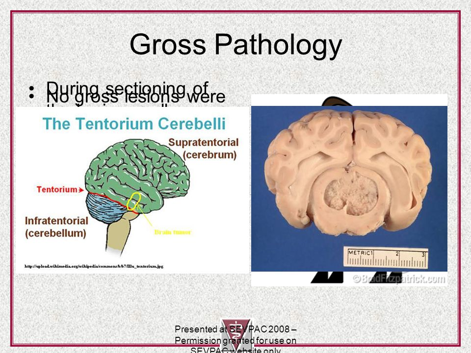 Pineal gland http://upload.wikimedia.org/wikipedia/com mons/6/6b/Illu_pituitary_pineal_glands.jpg Presented at SEVPAC 2008 – Permission granted for use on SEVPAC website only
