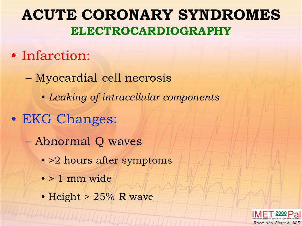 Raed Abu Sham'a, M.D ACUTE CORONARY SYNDROMES ELECTROCARDIOGRAPHY Infarction: –Myocardial cell necrosis Leaking of intracellular components EKG Changes: –Abnormal Q waves >2 hours after symptoms > 1 mm wide Height > 25% R wave