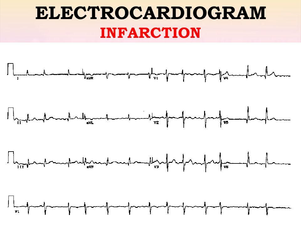 Raed Abu Sham'a, M.D ELECTROCARDIOGRAM INFARCTION