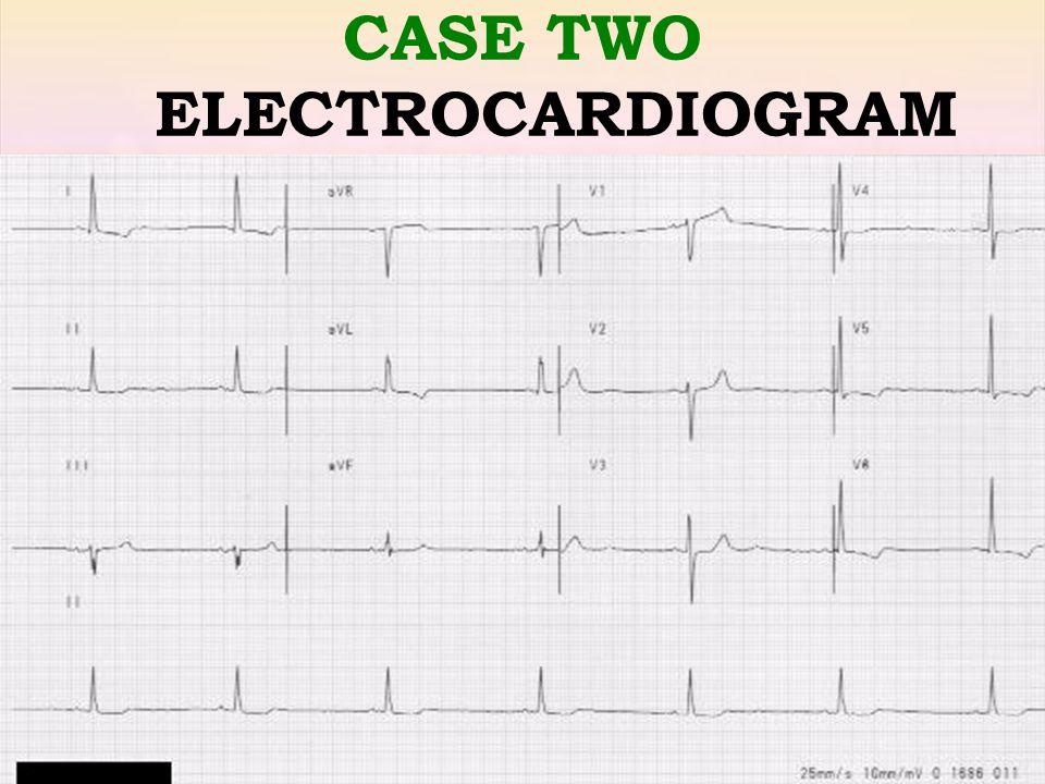 Raed Abu Sham'a, M.D CASE TWO ELECTROCARDIOGRAM
