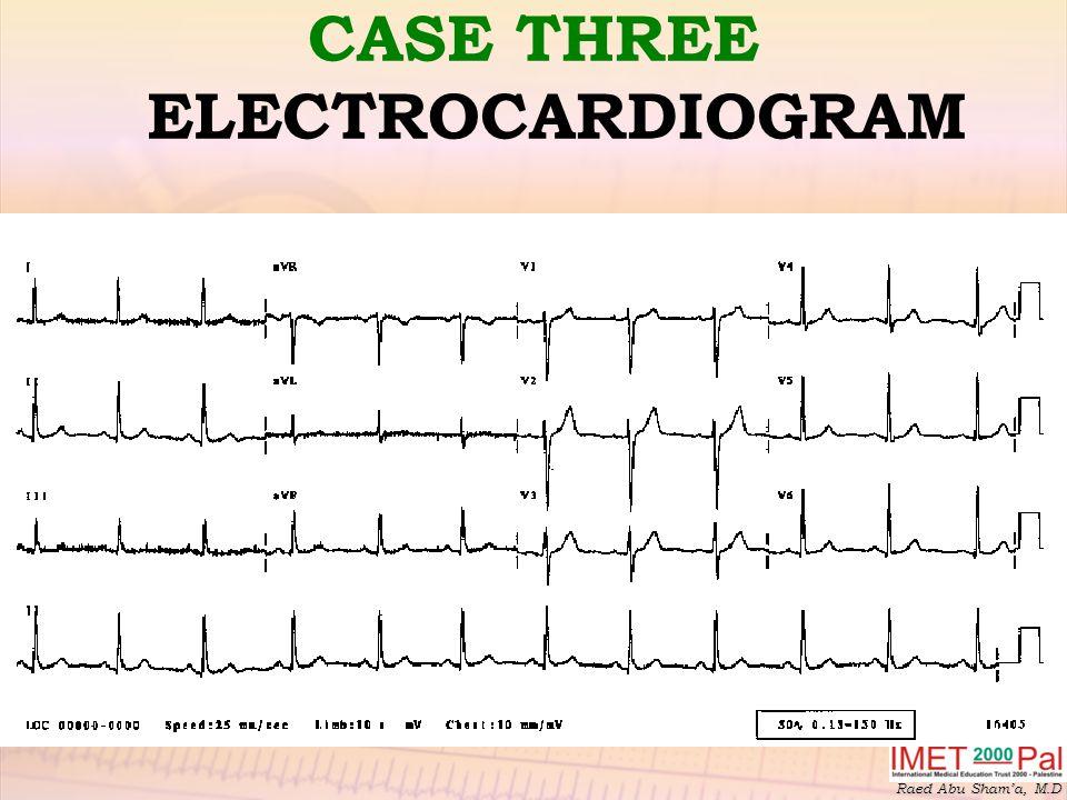 Raed Abu Sham'a, M.D CASE THREE ELECTROCARDIOGRAM