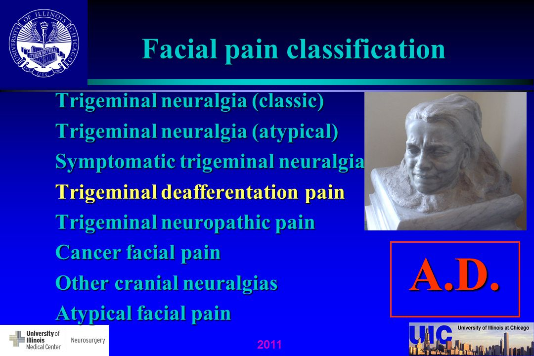 2011 Facial pain classification Trigeminal neuralgia (classic) Trigeminal neuralgia (atypical) Symptomatic trigeminal neuralgia Trigeminal deafferenta