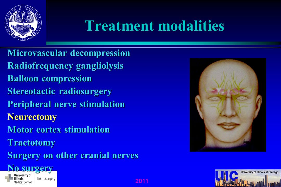 2011 Treatment modalities Microvascular decompression Radiofrequency gangliolysis Balloon compression Stereotactic radiosurgery Peripheral nerve stimu