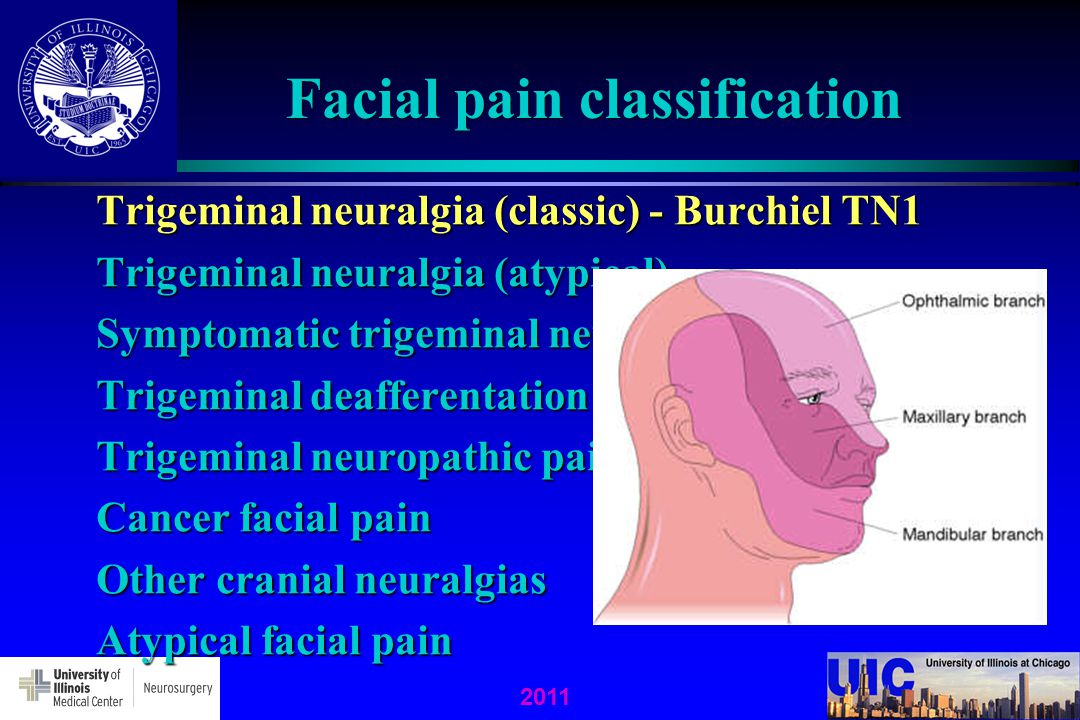 2011 Facial pain classification Trigeminal neuralgia (classic) - Burchiel TN1 Trigeminal neuralgia (atypical) Symptomatic trigeminal neuralgia Trigemi