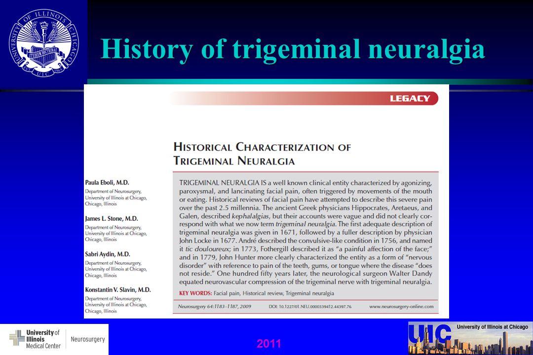 2011 History of trigeminal neuralgia