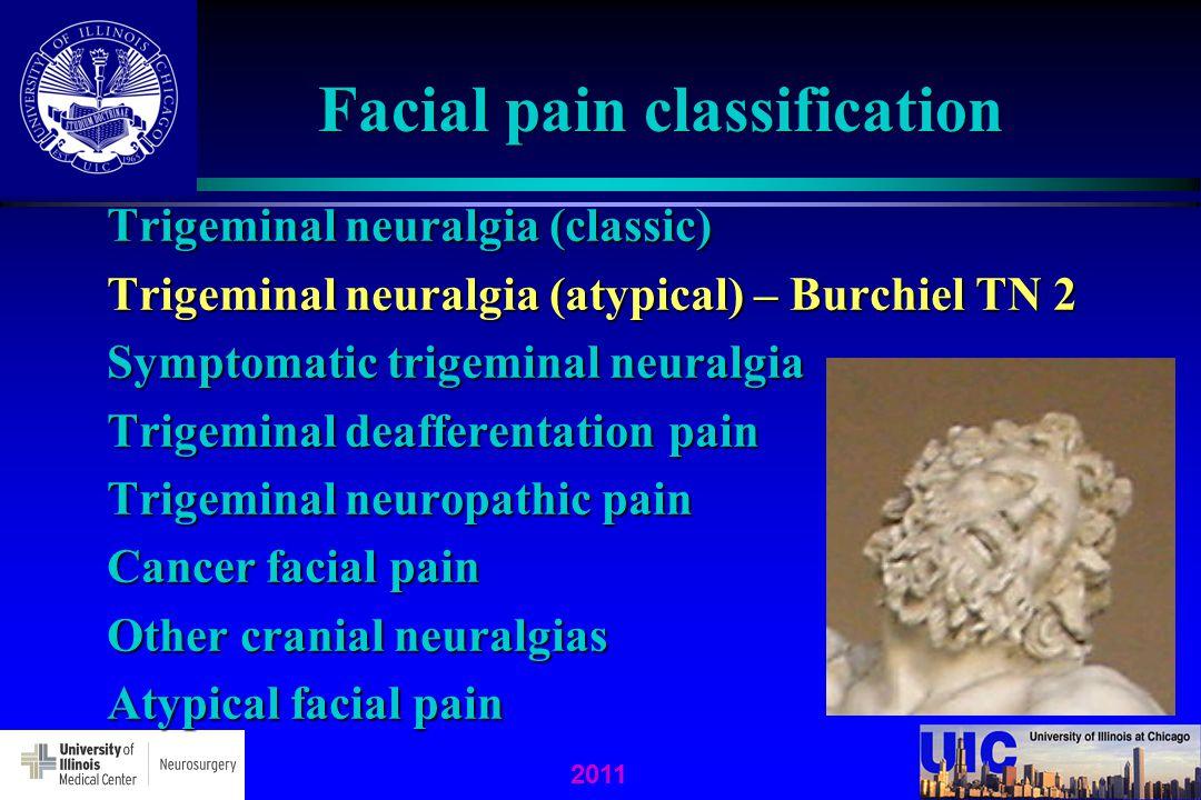Facial pain classification Trigeminal neuralgia (classic) Trigeminal neuralgia (atypical) – Burchiel TN 2 Symptomatic trigeminal neuralgia Trigeminal deafferentation pain Trigeminal neuropathic pain Cancer facial pain Other cranial neuralgias Atypical facial pain 2011