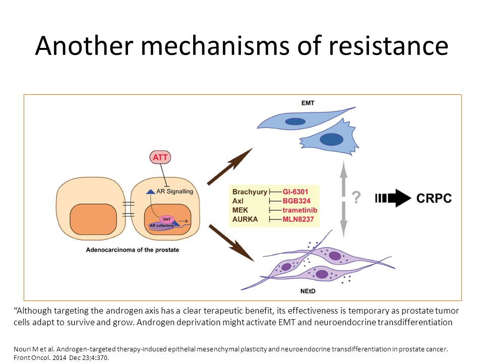 Another mechanisms of resistance Nouri M et al. Androgen-targeted therapy-induced epithelial mesenchymal plasticity and neuroendocrine transdifferenti