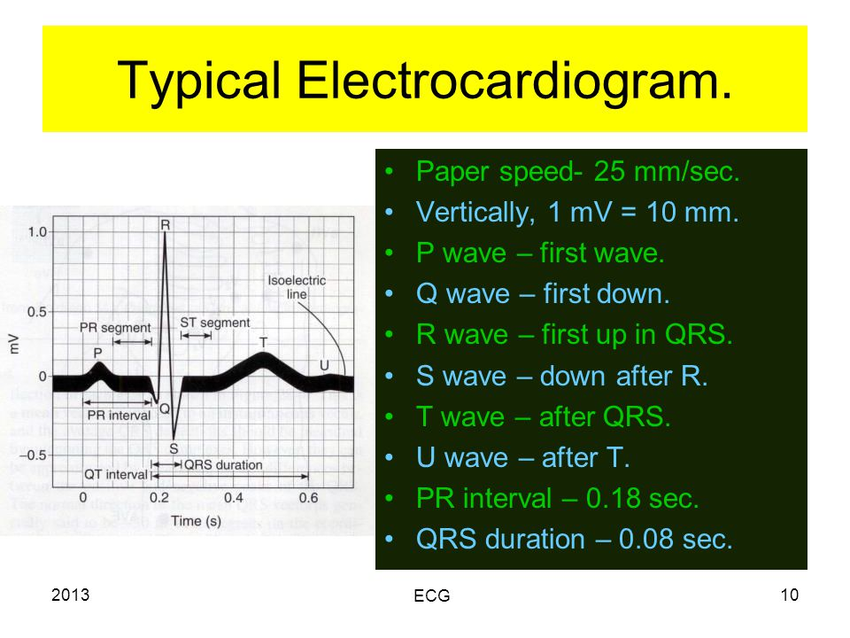 2013 ECG 10 Typical Electrocardiogram. Paper speed- 25 mm/sec.