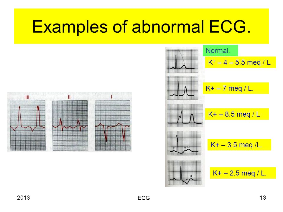 2013 ECG 13 Examples of abnormal ECG. Normal. K + – 4 – 5.5 meq / L K+ – 7 meq / L.