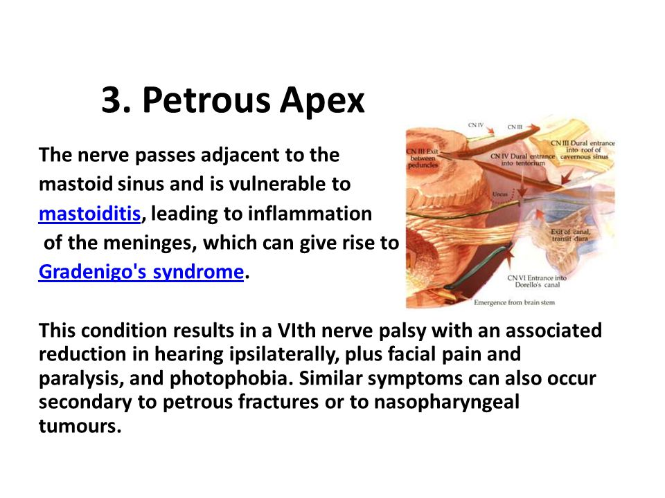 3. Petrous Apex The nerve passes adjacent to the mastoid sinus and is vulnerable to mastoiditismastoiditis, leading to inflammation of the meninges, w
