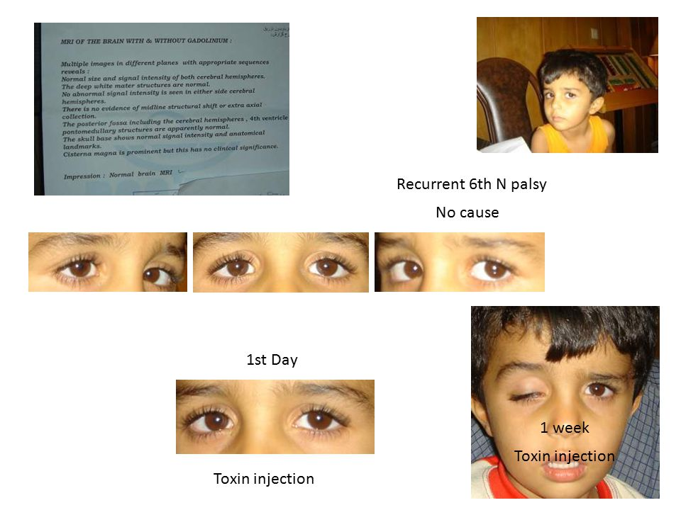 Recurrent 6th N palsy No cause Toxin injection 1st Day 1 week