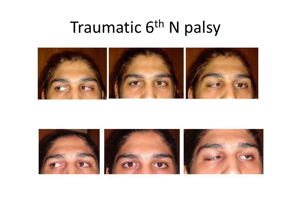 Traumatic 6 th N palsy