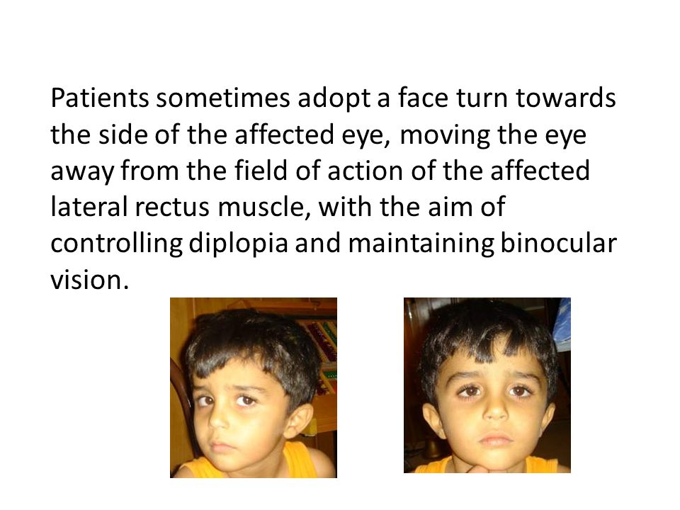 DiplopiaDiplopia is typically experienced by adults with VI nerve palsies, but children with the condition may not experience diplopia due to suppression.diplopiasuppression The neural plasticity present in childhood allows the child to switch off the information coming from one eye, thus relieving any diplopic symptoms.
