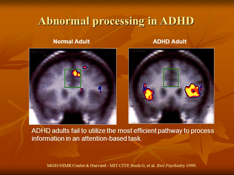 Abnormal processing in ADHD Normal Adult ADHD Adult ADHD adults fail to utilize the most efficient pathway to process information in an attention-based task.