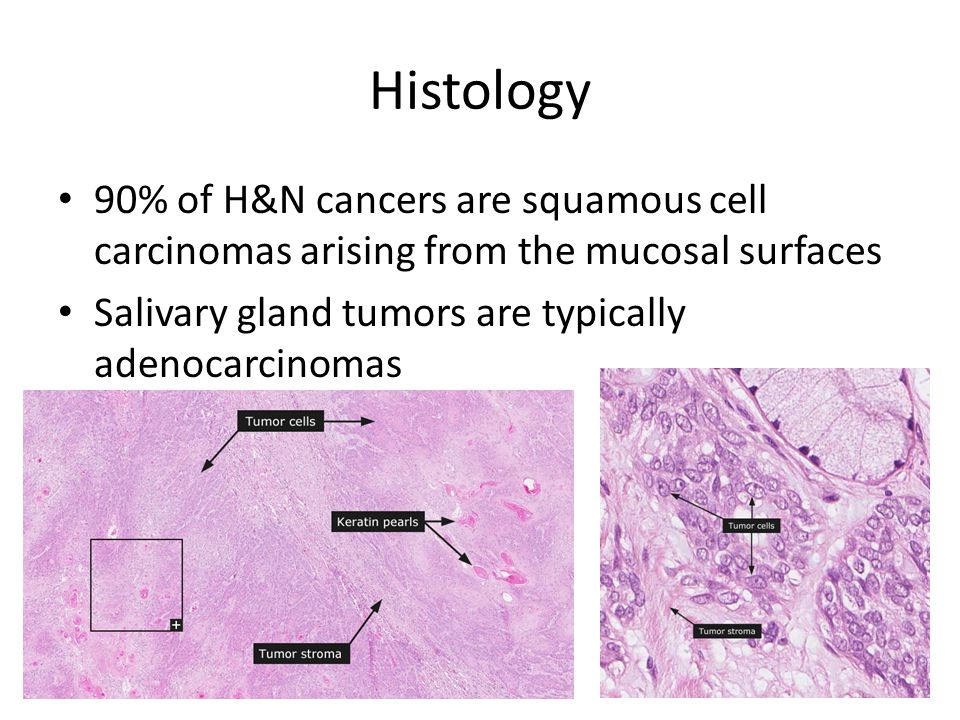 Histology 90% of H&N cancers are squamous cell carcinomas arising from the mucosal surfaces Salivary gland tumors are typically adenocarcinomas