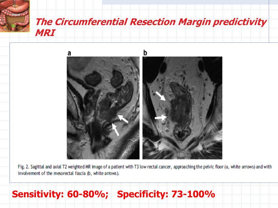 The Circumferential Resection Margin predictivity MRI Sensitivity: 60-80%; Specificity: 73-100%