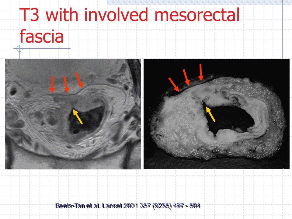 T3 with involved mesorectal fascia Beets-Tan et al. Lancet 2001 357 (9255) 497 - 504