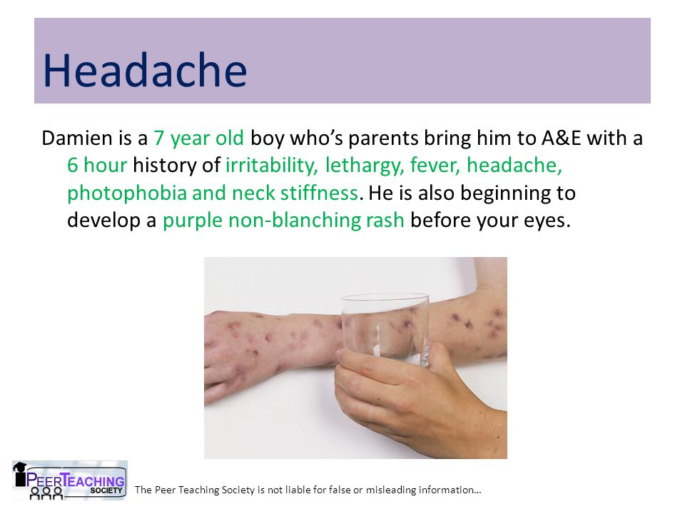 The Peer Teaching Society is not liable for false or misleading information… Headache Damien is a 7 year old boy who's parents bring him to A&E with a