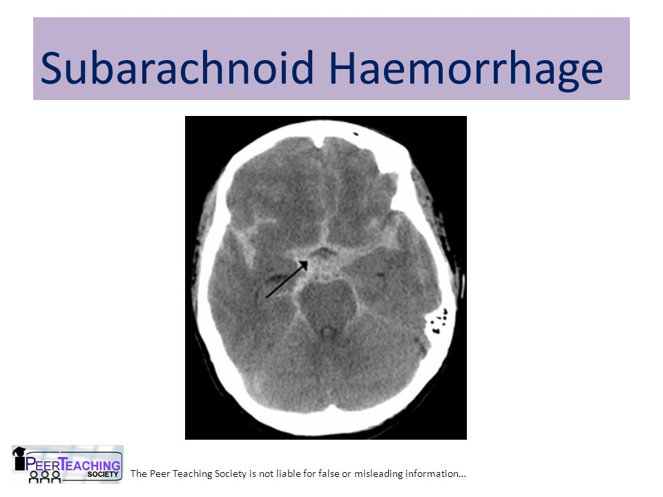 The Peer Teaching Society is not liable for false or misleading information… Subarachnoid Haemorrhage