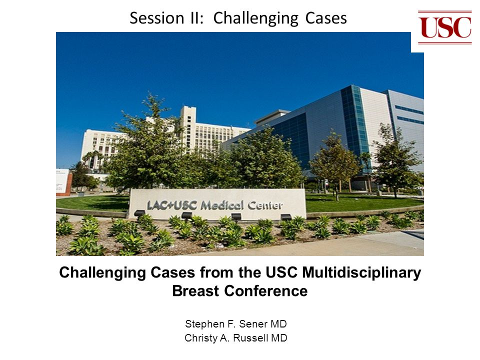 Challenging Cases from the USC Multidisciplinary Breast Conference Stephen F. Sener MD Christy A. Russell MD Session II: Challenging Cases