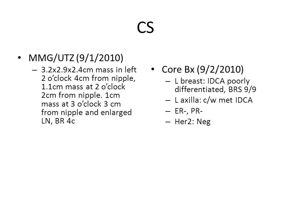 CS MMG/UTZ (9/1/2010) – 3.2x2.9x2.4cm mass in left 2 o'clock 4cm from nipple, 1.1cm mass at 2 o'clock 2cm from nipple.
