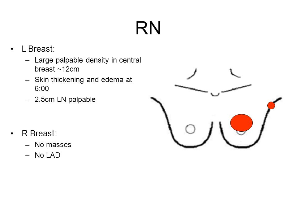 RN L Breast: –Large palpable density in central breast ~12cm –Skin thickening and edema at 6:00 –2.5cm LN palpable R Breast: –No masses –No LAD