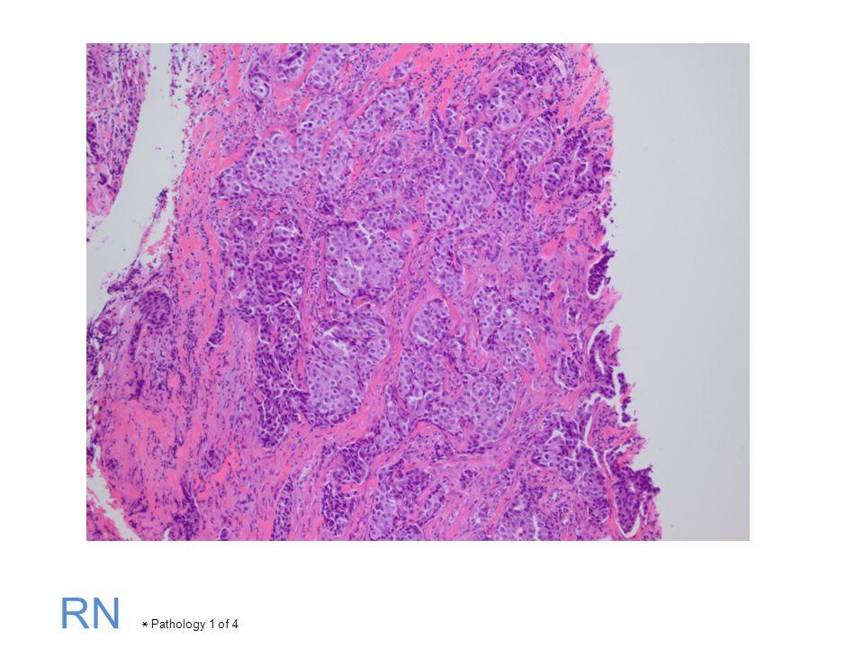 RN  Pathology 1 of 4