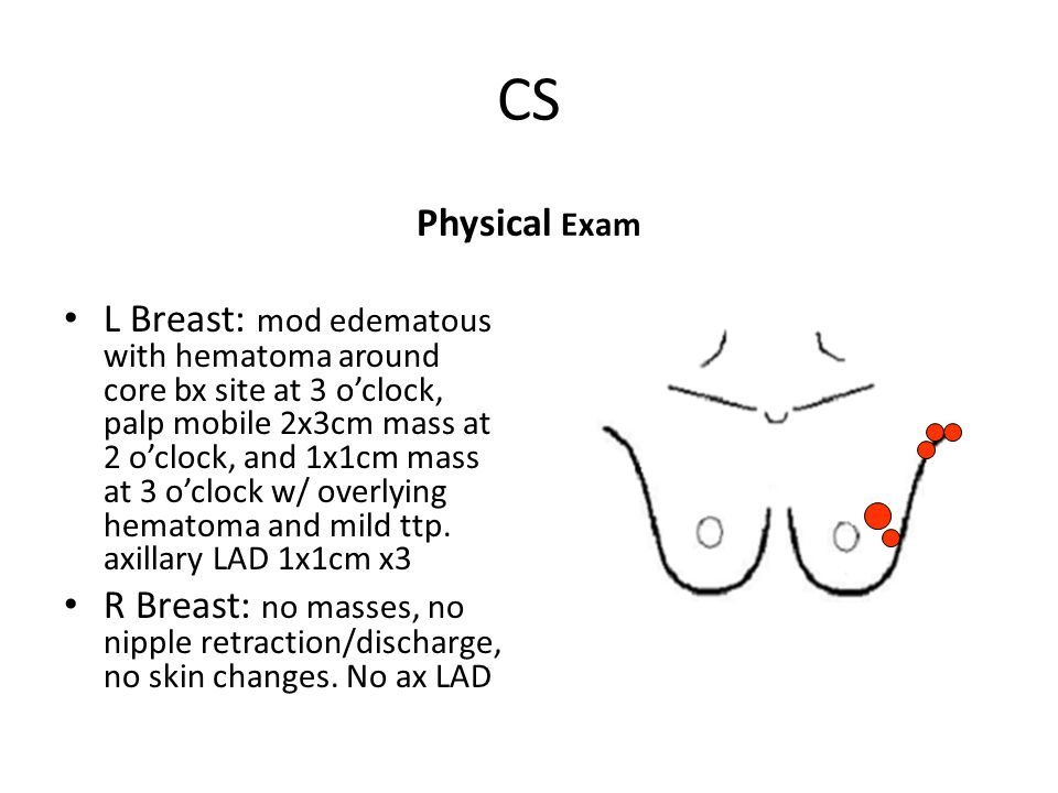 CS Physical Exam L Breast: mod edematous with hematoma around core bx site at 3 o'clock, palp mobile 2x3cm mass at 2 o'clock, and 1x1cm mass at 3 o'cl