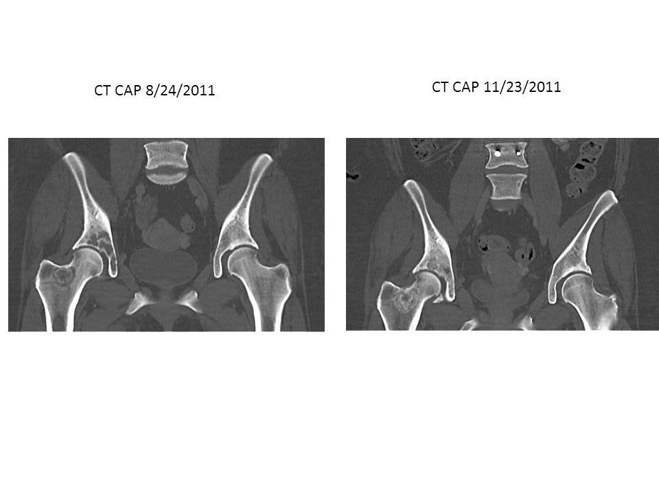 CT CAP 11/23/2011 CT CAP 8/24/2011