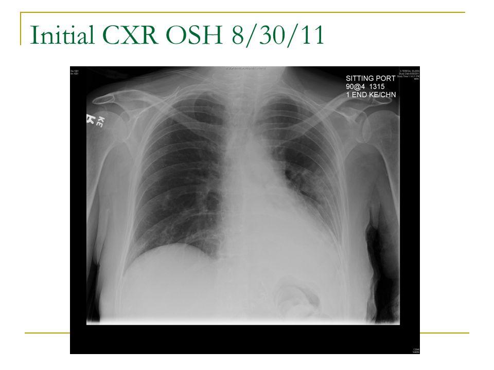 Initial CXR OSH 8/30/11