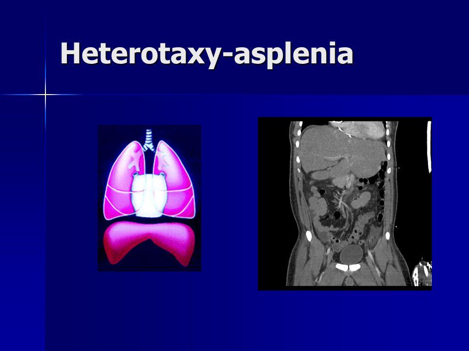 Heterotaxy-asplenia