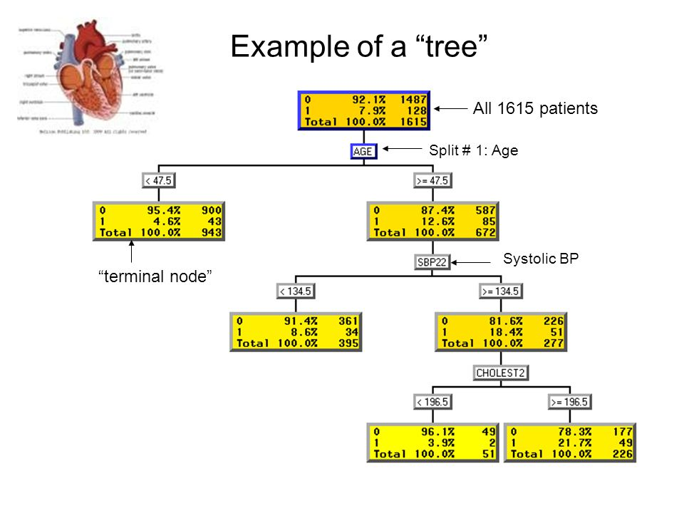Example of a tree All 1615 patients Split # 1: Age terminal node Systolic BP
