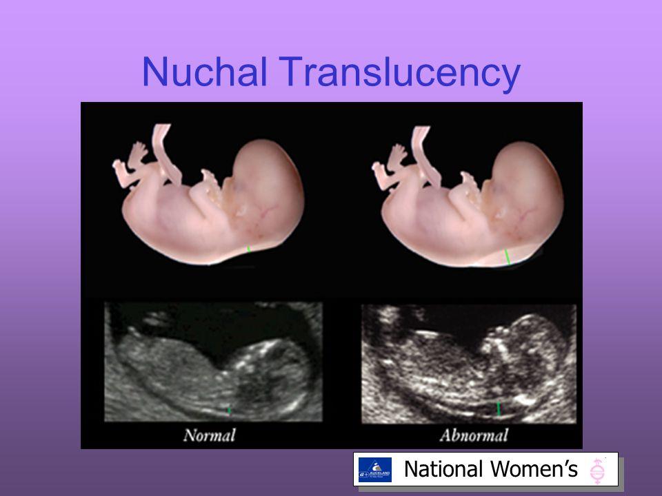 National Women's Nuchal Translucency