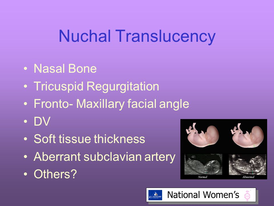 National Women's Nuchal Translucency Nasal Bone Tricuspid Regurgitation Fronto- Maxillary facial angle DV Soft tissue thickness Aberrant subclavian artery Others?