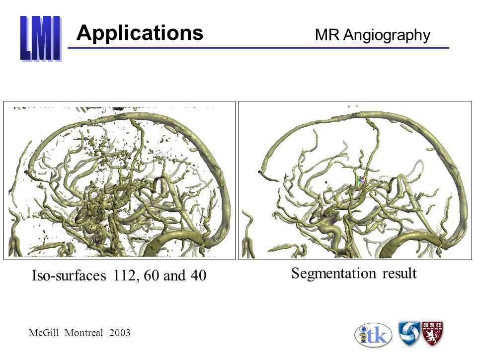 McGill Montreal 2003 Applications MR Angiography Segmentation result Iso-surfaces 112, 60 and 40