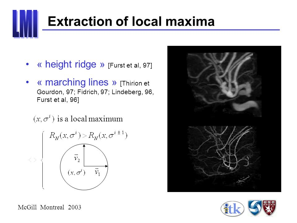 McGill Montreal 2003 « height ridge » [Furst et al, 97] « marching lines » [Thirion et Gourdon, 97; Fidrich, 97; Lindeberg, 96, Furst et al, 96] is a local maximum Extraction of local maxima