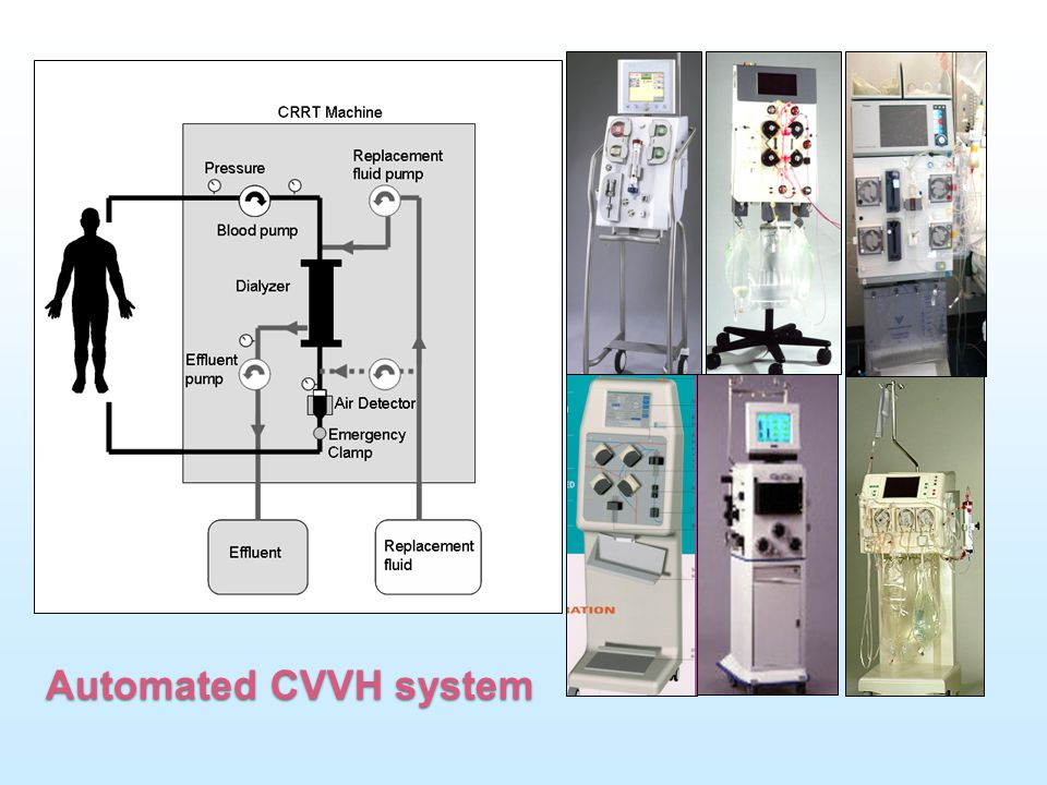 Automated CVVH system