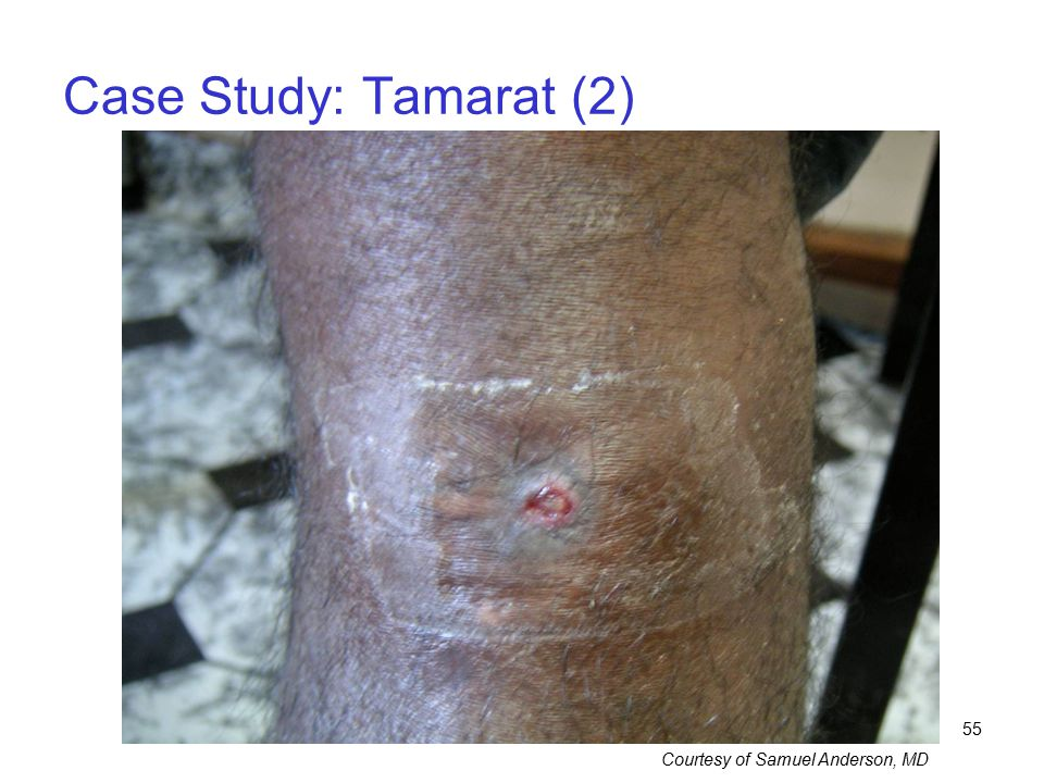55 Case Study: Tamarat (2) Courtesy of Samuel Anderson, MD