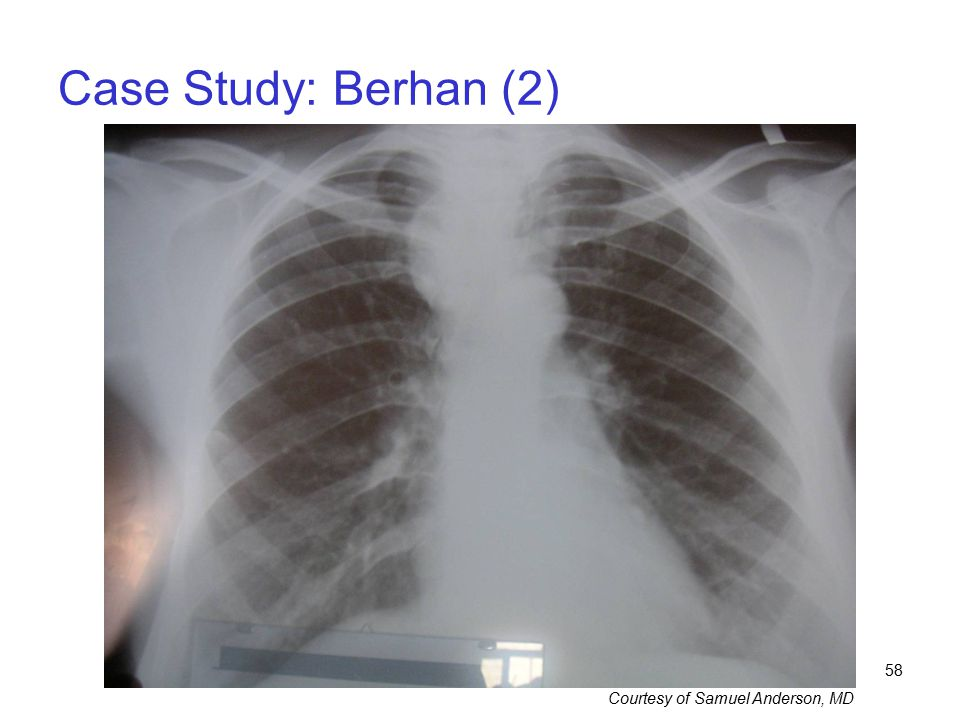 58 Case Study: Berhan (2) Courtesy of Samuel Anderson, MD