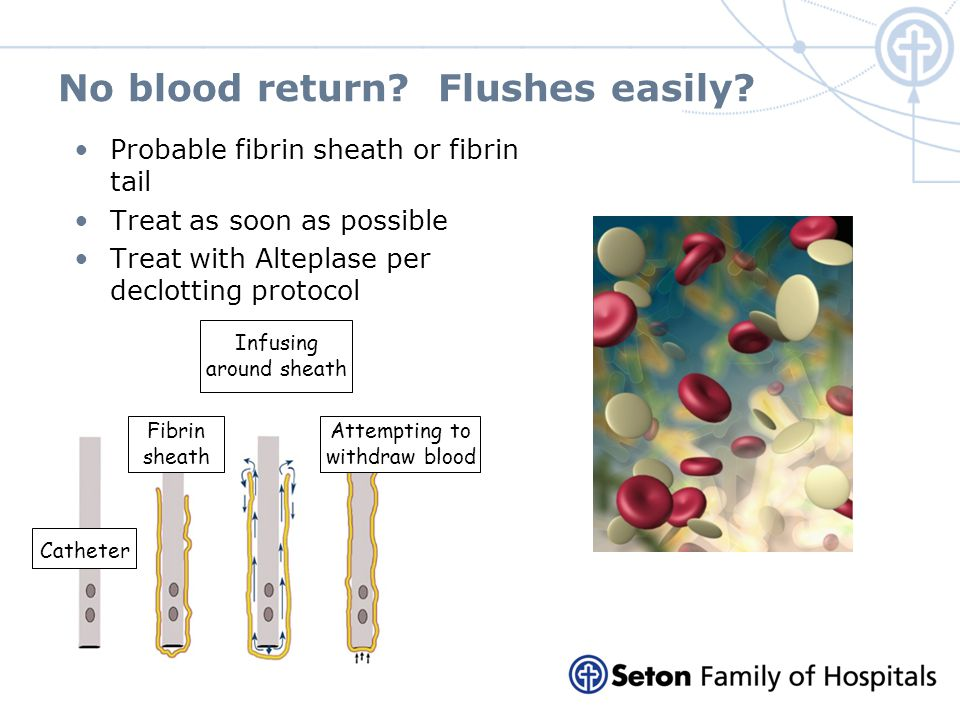 No blood return? Flushes easily? Probable fibrin sheath or fibrin tail Treat as soon as possible Treat with Alteplase per declotting protocol Catheter