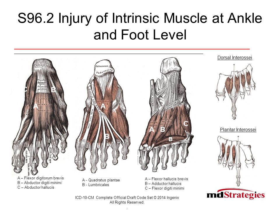 S96.2 Injury of Intrinsic Muscle at Ankle and Foot Level ICD-10-CM Complete Official Draft Code Set © 2014 Ingenix All Rights Reserved..