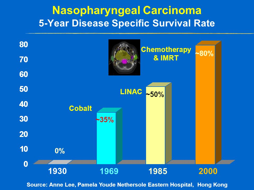 Nasopharyngeal Carcinoma 5-Year Disease Specific Survival Rate Source: Anne Lee, Pamela Youde Nethersole Eastern Hospital, Hong Kong 1985 2000 1969 1930 ~80% ~50% ~35% 0% Cobalt LINAC Chemotherapy & IMRT