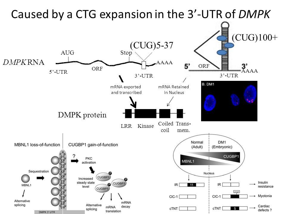 AUGStop (CUG)5-37 5'-UTR 3'-UTR ORF DMPK RNA DMPK protein AAAA Kinase Coiled coil Trans- mem.