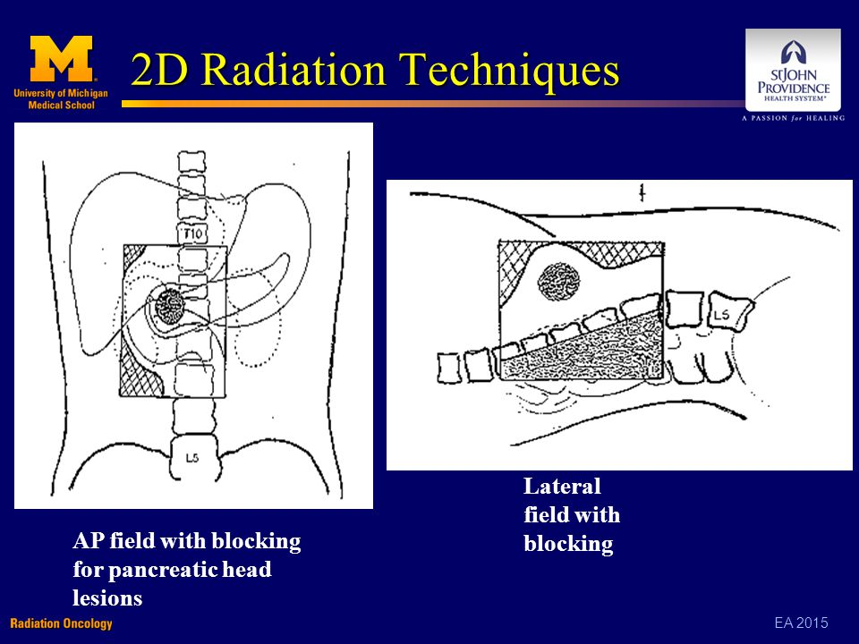 EA 2015 2D Radiation Techniques AP field with blocking for pancreatic head lesions Lateral field with blocking