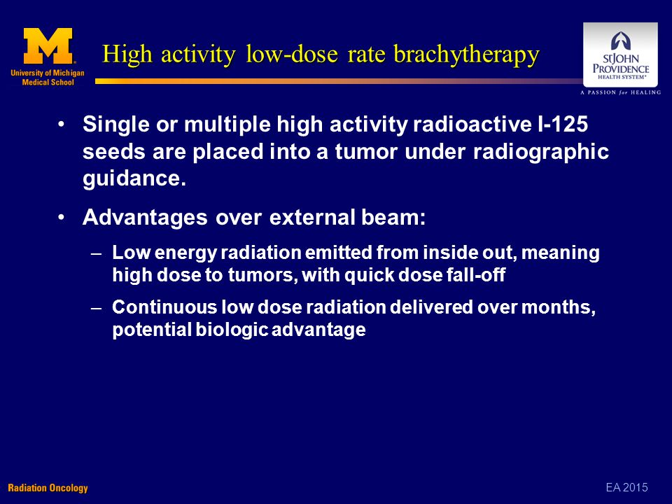 EA 2015 High activity low-dose rate brachytherapy Single or multiple high activity radioactive I-125 seeds are placed into a tumor under radiographic guidance.