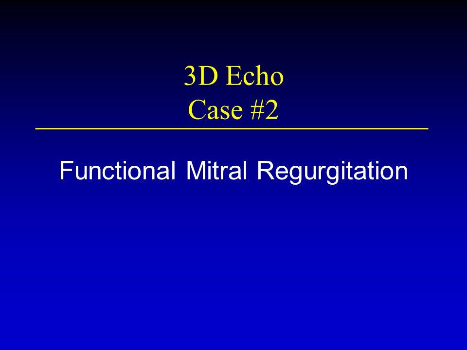 3D Echo Case #2 Functional Mitral Regurgitation