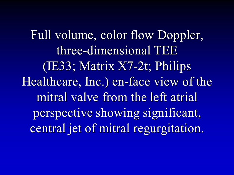 Full volume, color flow Doppler, three-dimensional TEE (IE33; Matrix X7-2t; Philips Healthcare, Inc.) en-face view of the mitral valve from the left atrial perspective showing significant, central jet of mitral regurgitation.