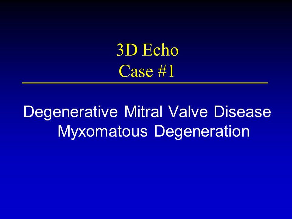 3D Echo Case #1 Degenerative Mitral Valve Disease Myxomatous Degeneration
