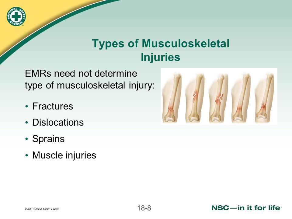 © 2011 National Safety Council 18-19 Signs and Symptoms of Musculoskeletal Injury (continued) Pain and tenderness Abnormal sensation (numbness, tingling) Inability to move area Joint locked into position Impaired function or circulation Difference in temperature from opposite extremity