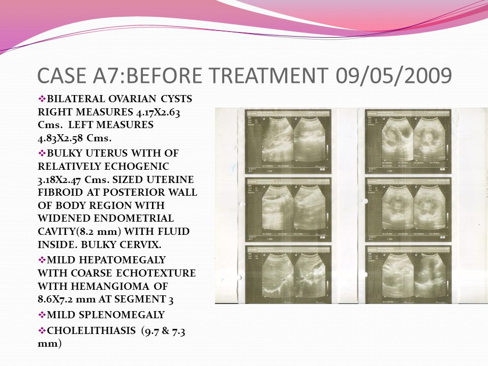 CASE A7:BEFORE TREATMENT 09/05/2009  BILATERAL OVARIAN CYSTS RIGHT MEASURES 4.17X2.63 Cms.